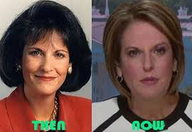 Gloria Borger in before and after photo of her plastic surgery