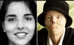 Before and after accident of Jacqueline Saburido's face.